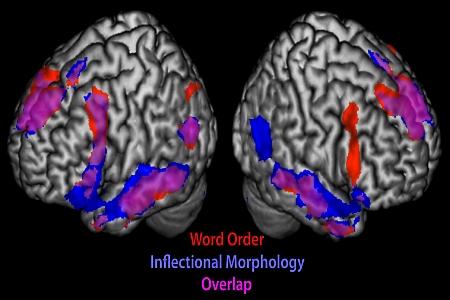 fMRI otak manusia menunjukkan pemprosesan susunan kata dan morfologi fleksi sedang berlaku (serta kawasan otak yang mengalami pertindihan)!